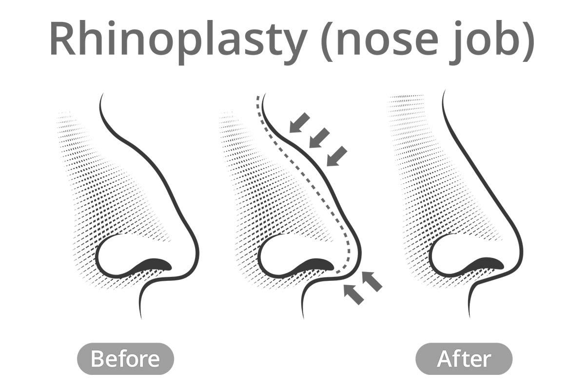 Startseite - Dr.Jörg Dabernig, der Experte für Nasenchirurgie in der ...